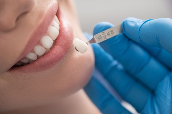 Reasons You May Be A Candidate For Dental Veneers