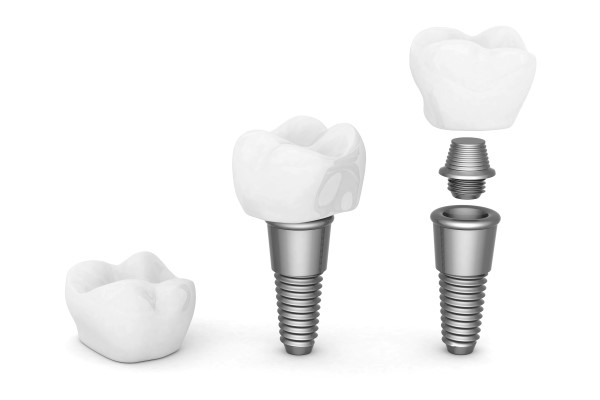 Dental Implant Options For Multiple Missing Teeth [Cosmetic Dentistry]