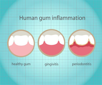 What Are The Causes And Symptoms Of Gum Disease?