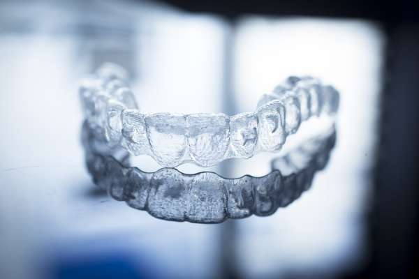 Invisalign:   Reasons To Choose Clear Aligners